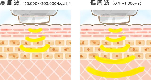超音波美顔器の周波数での違い
