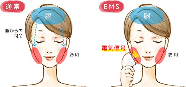 EMSのメカニズムの解図
